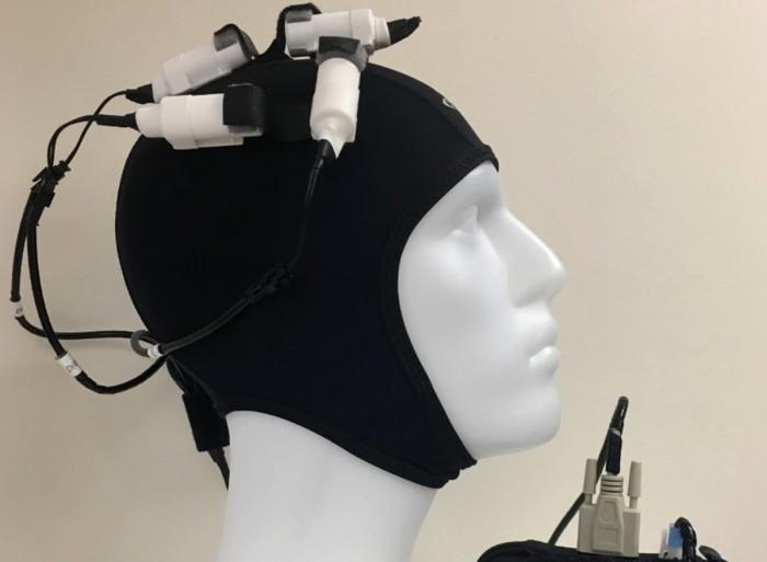 研究称非侵入性磁脑刺激设备可增强中风患者的大脑活动 加快康复速度